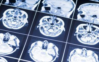 Neurological Issues from Car Accidents Syracuse NY